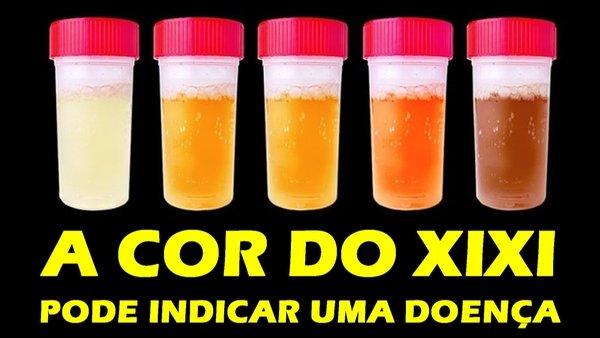 Cor da urina, o que significa?